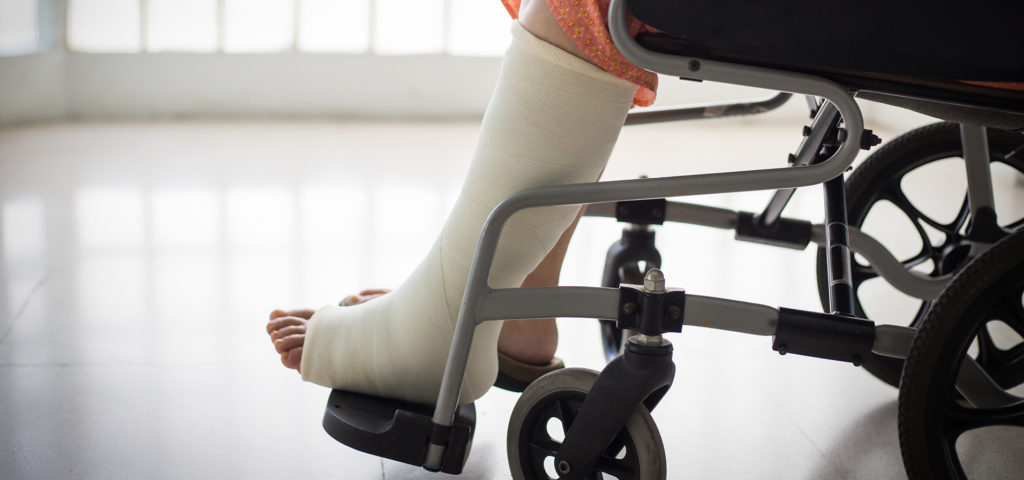 women with broken leg in riding in wheelchair at the hospital